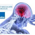 Accident vasculaire cérébral silencieux