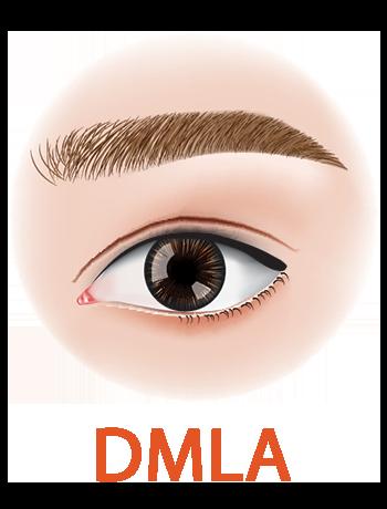 DMLA : maladie de l'œil