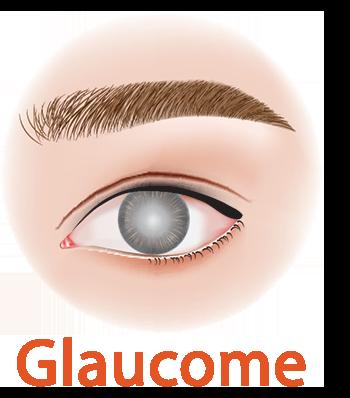 Glaucome Oeil
