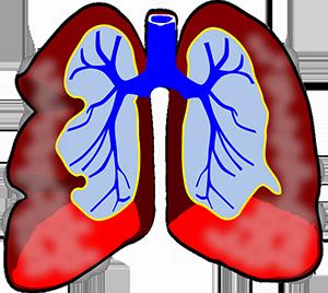 poumon asthme